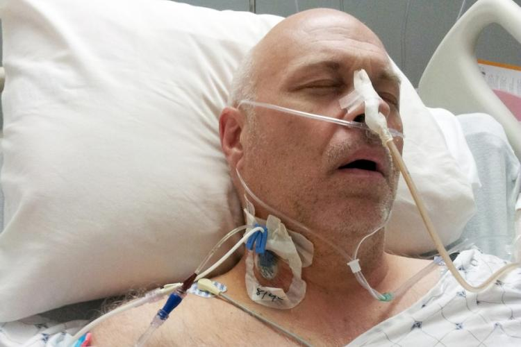 Army veteran David Sewell, seen here after surgery in 2013, said he was diagnosed that year with mesothelioma from asbestos. He believes he was exposed to asbestos during remediation work at Camp Walker, South Korea. DAVID SEWELL